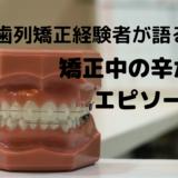 歯列矯正中の辛かったエピソード