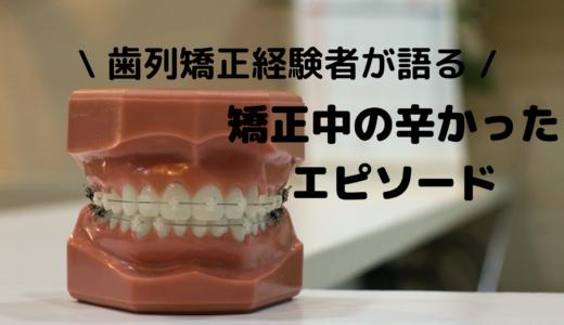 歯列矯正経験者が語る!矯正中の辛かったエピソード