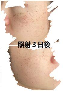 東京美容外科のルメッカ 照射3日後