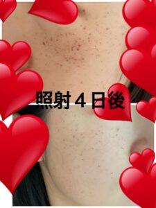 東京美容外科のルメッカ 照射4日後