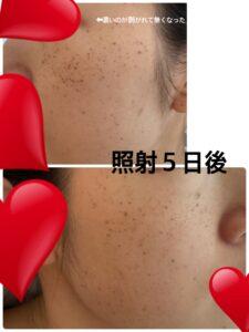 東京美容外科のルメッカ 照射5日後