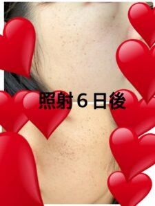 東京美容外科のルメッカ 照射6日後